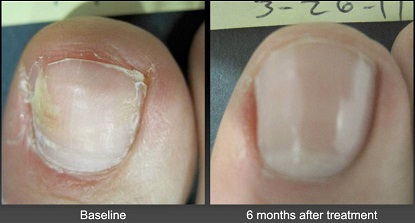 Toenail Laser Treatment